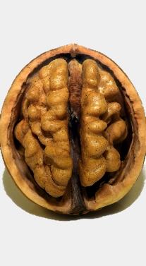 Voeding en je hersenen